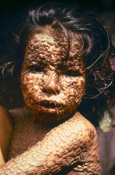 Дете оболело од великих богиња, Бангладеш, 1973. г. (Wikimedia)