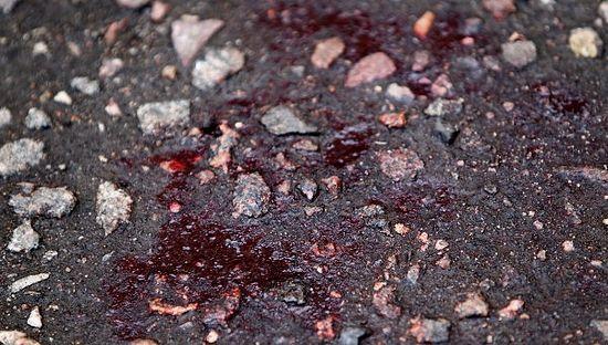 krv-tkacov